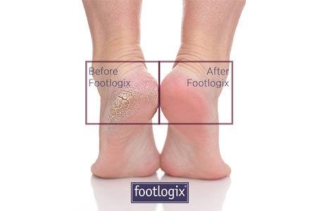 Soin des pieds, anti callosités Footlogix